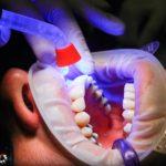 Zły sposób żywienia się to większe niedobory w ustach oraz także ich brak